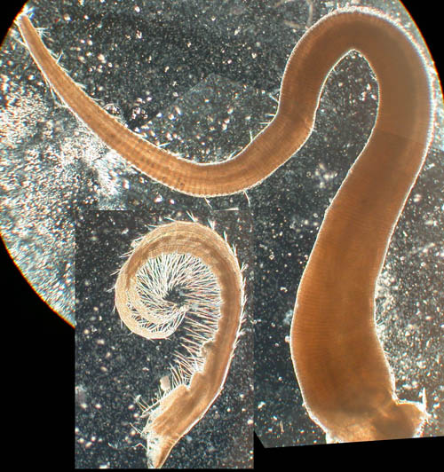 """A barnacle penis.  The stripes down the length are """"annulations"""": accordion like folds that allow it to stretch to many times its relaxed length.  The hairs along it serve as chemo-receptors, that is, they are the barnacle's sense of smell.  The small bristled structure on the lower left is a feeding cirrus, one of the appendages that the barnacle uses to gather food. Photo courtesy of Matt Hoch"""