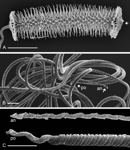 From Matzke-Karasz et al. 2009. Reproduction with giant sperm in the ostracode Eucypris virens (Cyprididae). (A) The distal section of the vas deferens is transformed into the chitinous skeleton of a sperm pump, or Zenker organ, pumping the giant sperm through the vas deferens into the voluminous, external penis. Arrowhead showing direction of sperm movement through the tube. (B) The filamentous, coiled sperm cells sport thin anterior (an) and thick posterior (po) parts. (C) Anterior (an) and posterior (po) tips of E. virens sperm cells. Scale bars 100 μm for A, 10 μm for B, C.