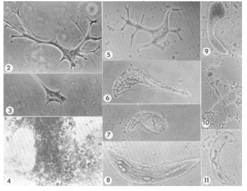 The nematophagous amoeba Theratromyxa weberi injesting its nematode prey (figure from Sayre 1973)