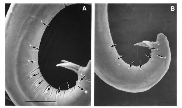 Genital Spicules in male nematodes. Painful to look at, nevermind experience firsthand (Nguyen 2007)