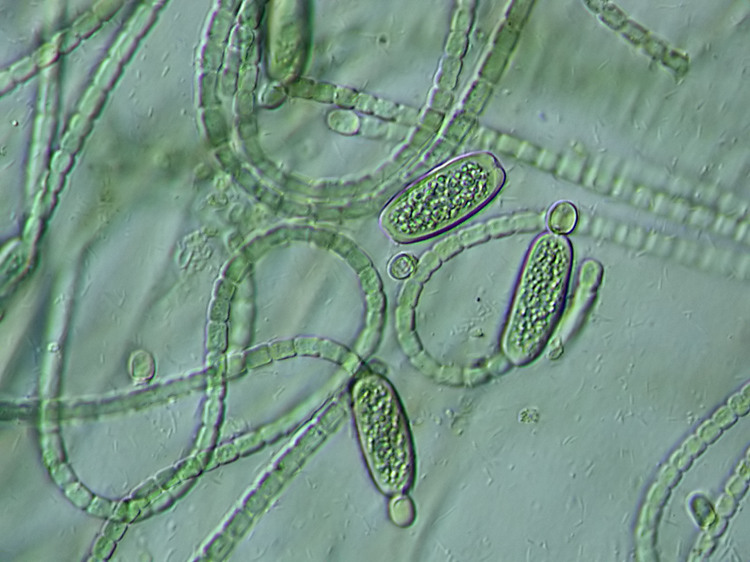 """The big cells are the """"business time"""" cells in this cyanobacteria ironically denoted Cylindrospermum."""