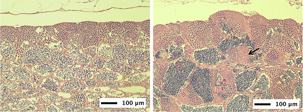 The image above shows the testes of a normal fish fed a control diet (left) next to the testes of a fish exposed to plastic marine debris (right). The testes of this adult male fish exposed to plastic marine debris has rather abnormal germ cell proliferation. We are unsure whether these abnormal germ cells will lead to intersex or reproductive impairment, but the abnormality of these gonads and the similarity to female germ cells is cause for concern.